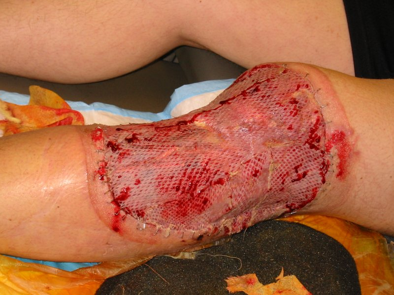 shark attacks in hawaii. Skin Graft for Shark Attack